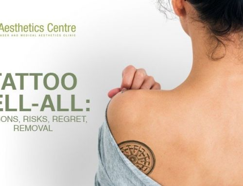 TATTOO TELL-ALL: Reasons, Risks, Regret, Removal