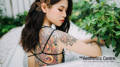 Laser Tattoo Removal- Why People Get Their Ink Erased - The Aesthetics Centre