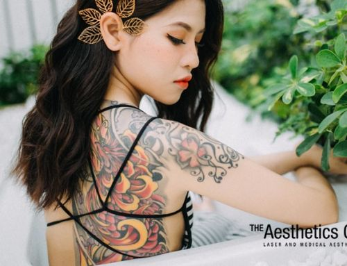 Laser Tattoo Removal: Why People Get Their Ink Erased