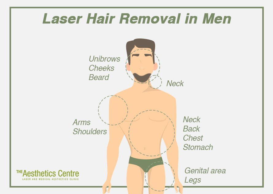 The Aesthetics Centre - How Does Laser Hair Removal for Men Work