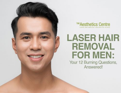 Laser Hair Removal for Men: Your 12 Burning Questions, Answered!